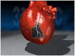 сердце 2